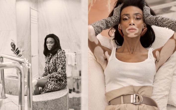 Winnie Harlow - Harper's Bazaar Tailandia @ Harper Smith (4)